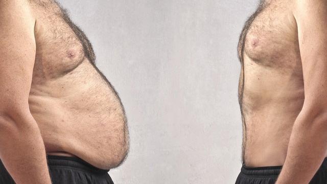 Sobrepeso vs. normopeso.