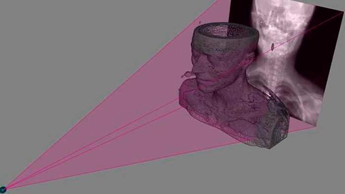 Imagen en 3D obtenida a partir de una radiografía.