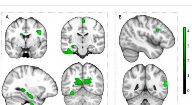 Regiones cerebrales que muestran asociaciones independientes positivas de velocidad cardiorrespiratoria y agilidad de velocidad con volumen de materia gris en niños con sobrepeso u obesidad.