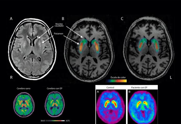 Neuroimagen del cerebro de una persona afectada por parkinson.